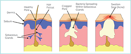 acne explained acneafterthirty  pimple diagram